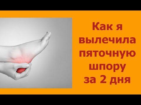 Лечение пяточной шпоры народными средствами