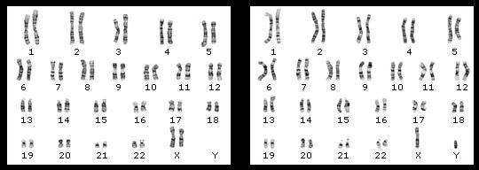 Что такое кариотип человека, анализ кариотипа клеток человека - кариотипирование               эко-блог