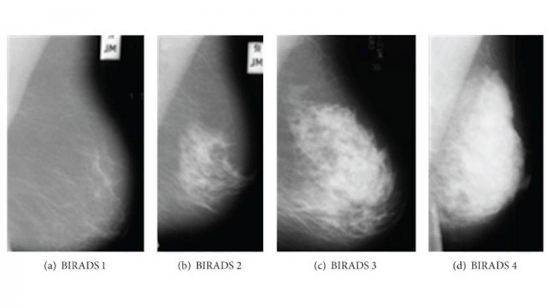 Фиброзно-кистозная мастопатия birads-3