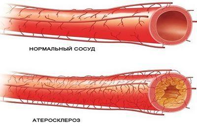 Атеросклероз брахиоцефальных артерий (бца): что это, симптомы, причины и лечение | мрикрнц.рф
