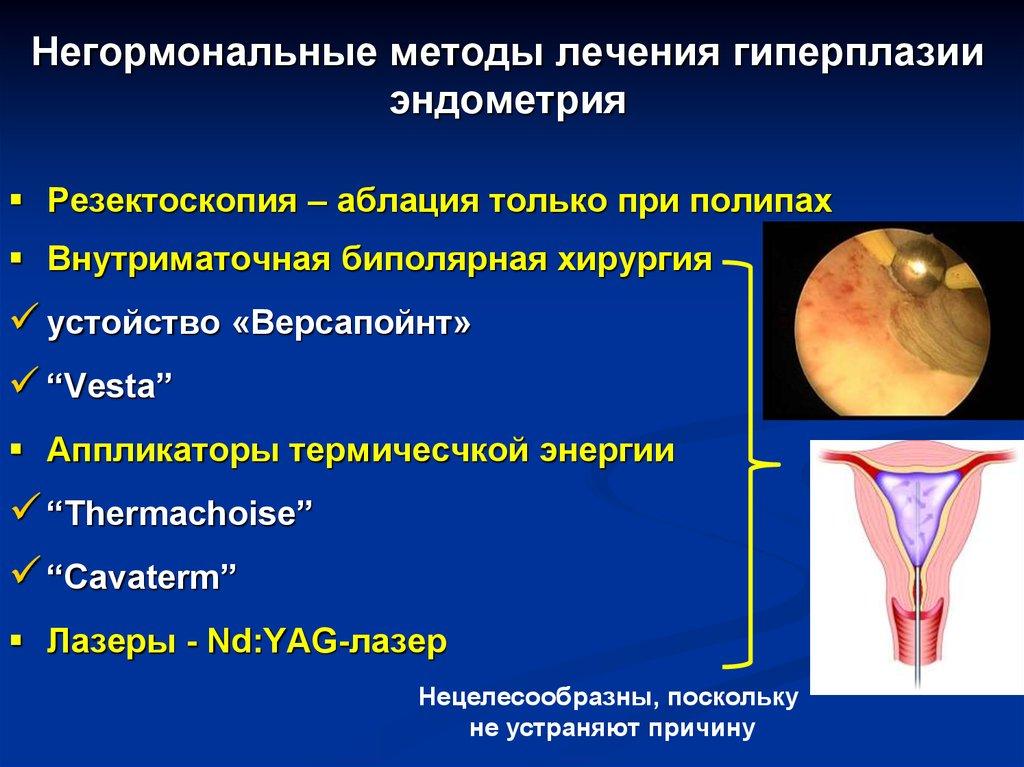 Гиперплазия эндометрия матки - что это, чем и как лечить, симптомы, виды