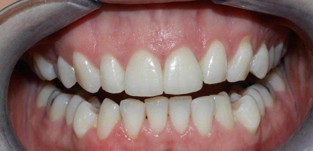Что такое пародонтит и пародонтоз — зубы