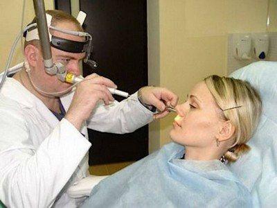Вазомоторный ринит: симптомы и лечение у взрослых - подробная информация