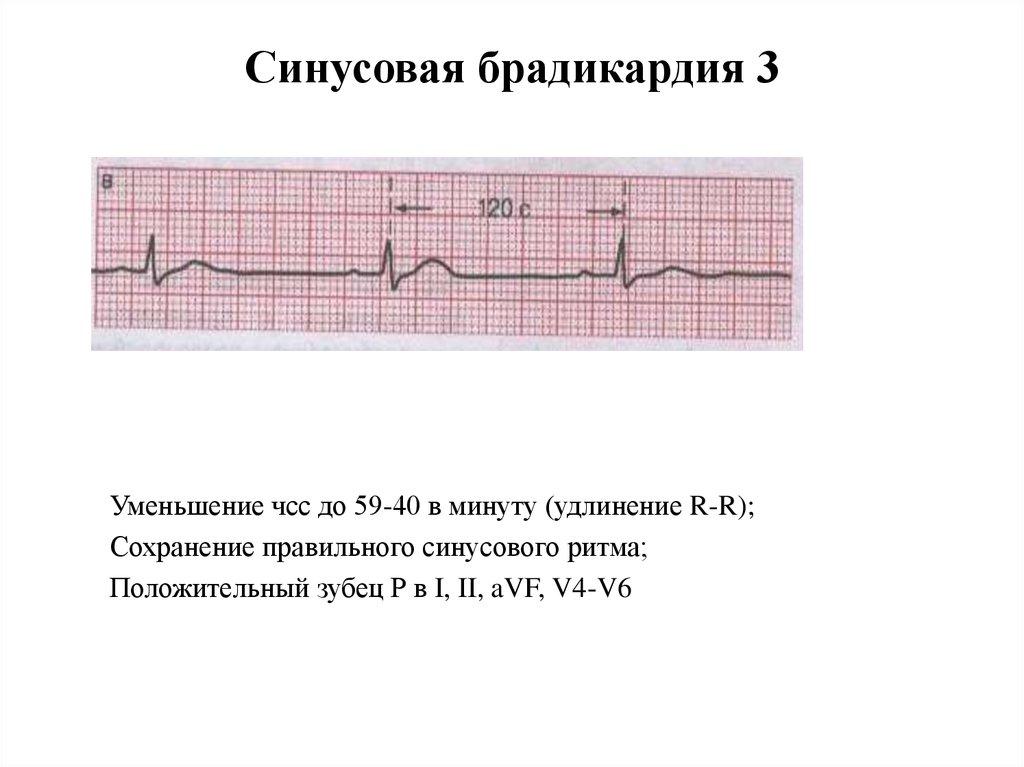 Причины, симптомы и лечение брадикардии сердца