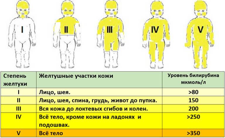 Механическая желтуха у новорожденных: причины и лечение