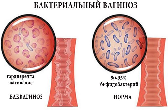 Бактериальный вагинит | wmj.ru