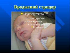 Стридор (врожденное стридорозное дыхание): понятие и как развивается, признаки, лечение