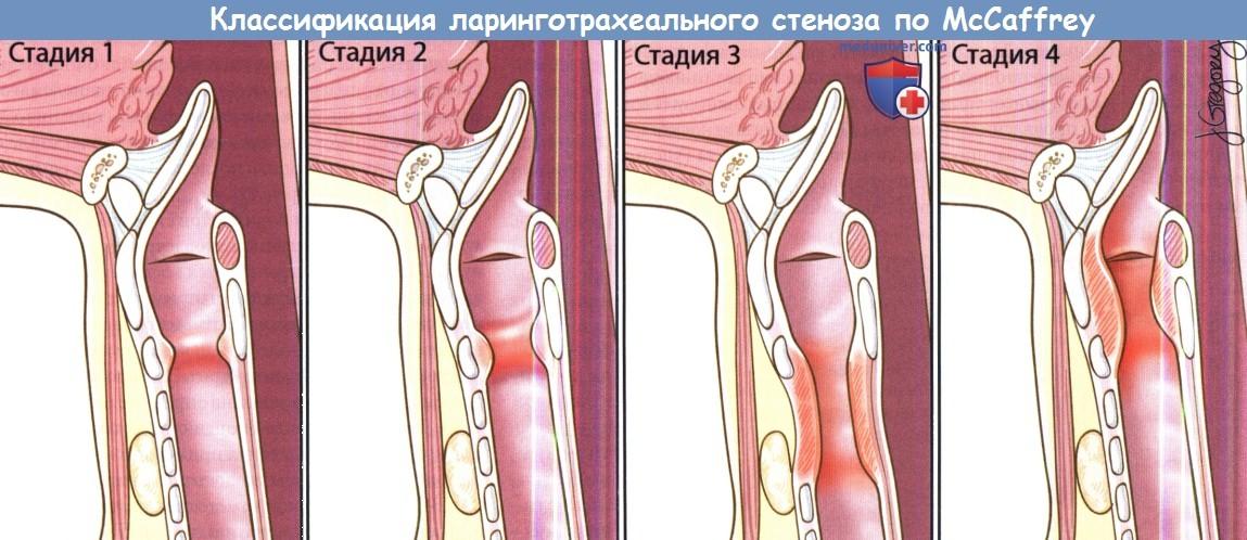 Стеноз: виды, симптомы и лечение