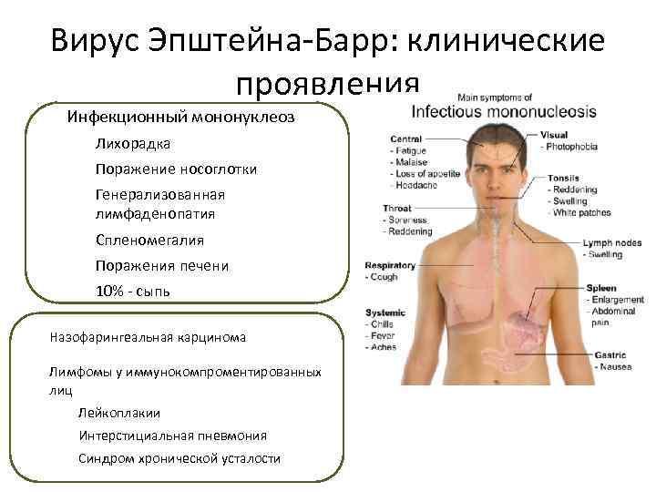 Комаровский - вирус эпштейна барра у детей: что это такое, симптомы, лечение