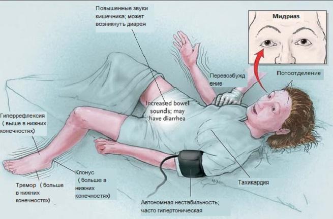Серотониновый синдром: причины, проявления, диагностика, как лечить