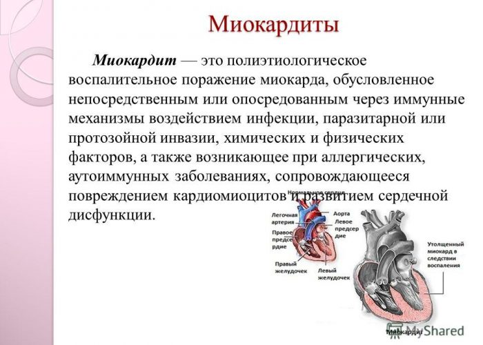 Перикардит: причины развития с симптомами и лечением патологии