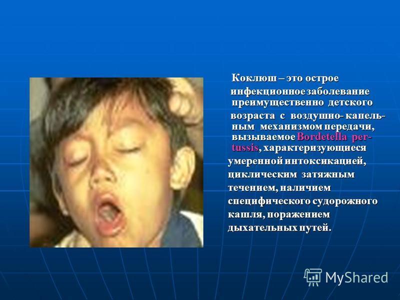 Коклюш у взрослых: симптомы, лечение, профилактика