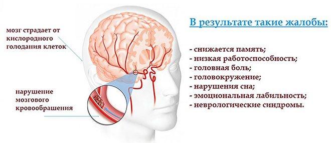Что такое дисциркуляторная энцефалопатия 2 степени и сколько можно прожить?