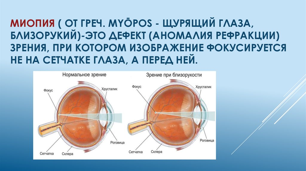 Эффективное лечение миопии слабой степени