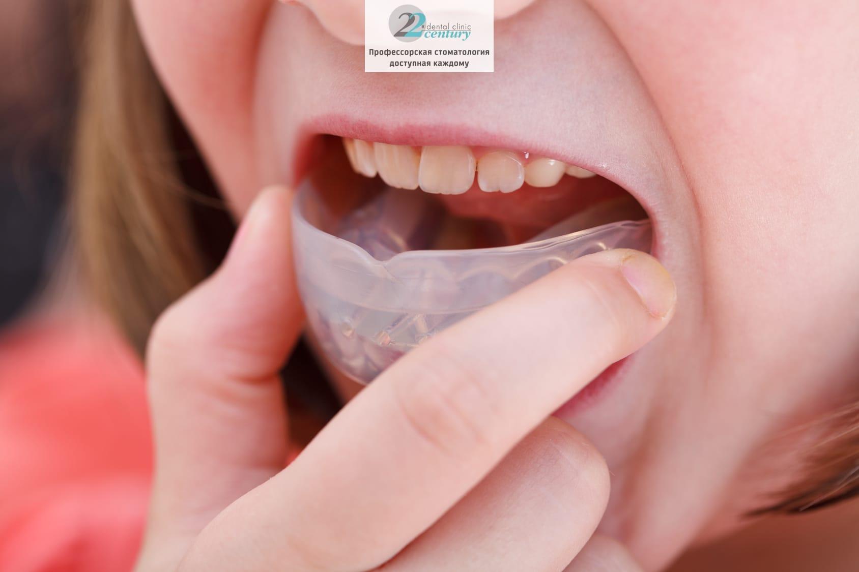 Трейнер для зубов: плюсы т4к, т4а и других устройств, фото до и после у взрослых и детей