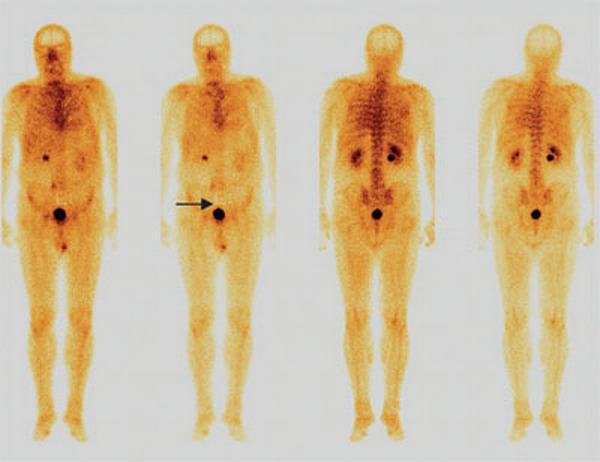 Сцинтиграфия костей скелета: как проводят и как подготовиться