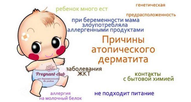 Диатез у детей: симптомы и лечение у грудничка, как выглядит диатез