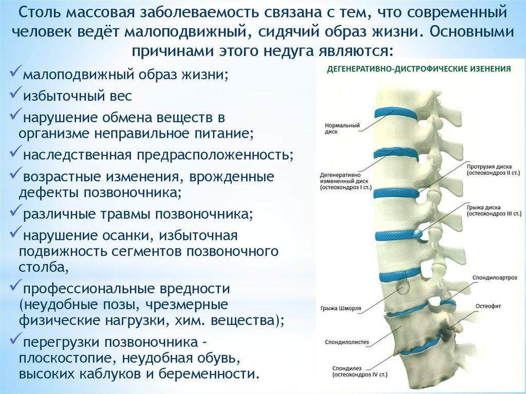 Спондилез шейного отдела позвоночника и его лечение