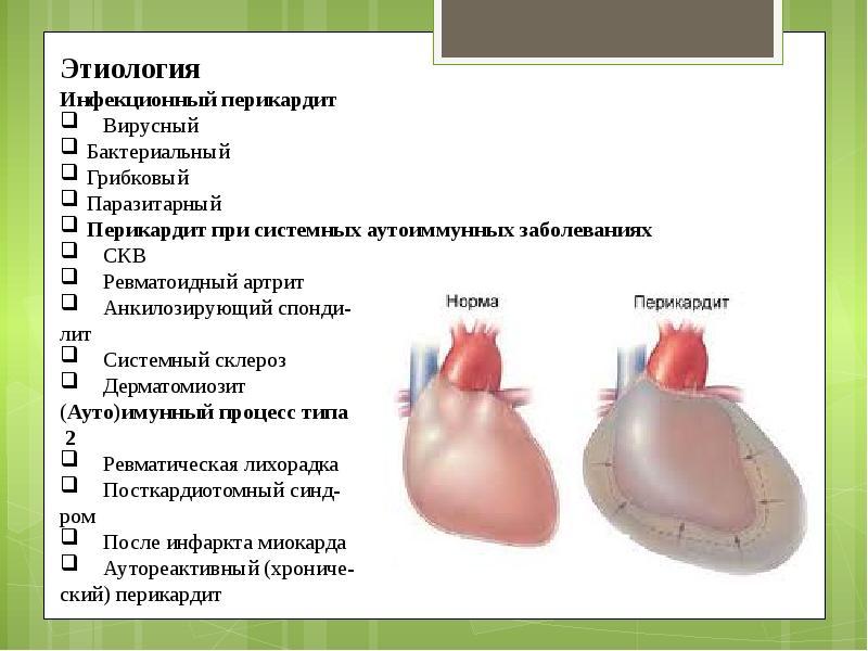 Острый перикардит: симптомы, причины, лечение, прогноз