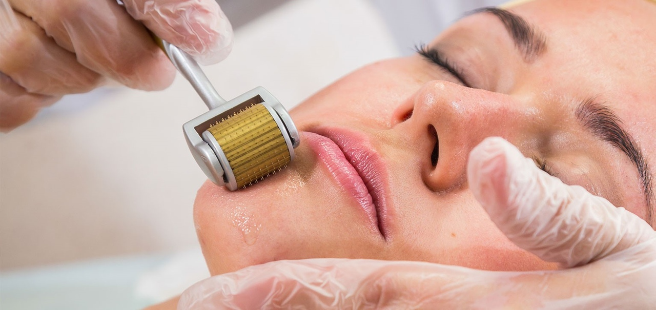 Игольчатый массаж, микронидлинг, мезороллеры? что это все такое? эффективна ли такая процедура?