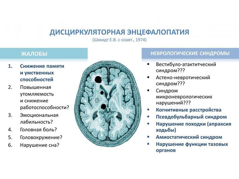 Дисциркуляторная энцефалопатия головного мозга: лечение и симптомы