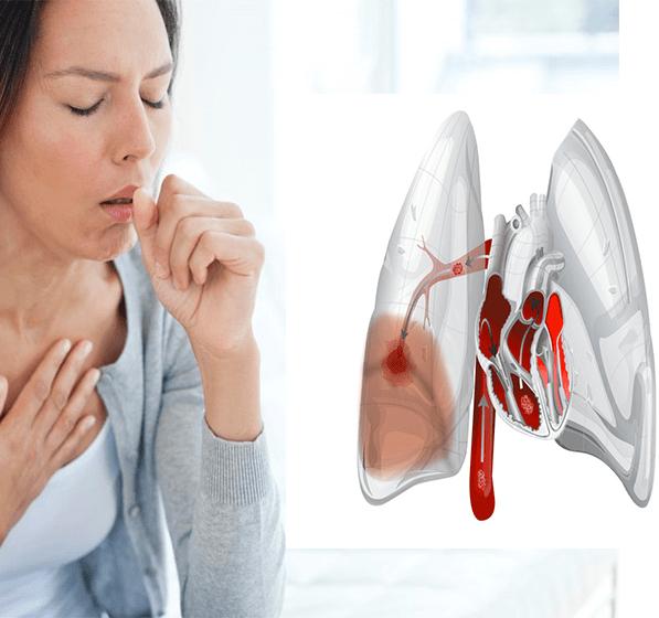 Что такое сердечный кашель и какой прогноз на жизнь при данной паталогии?
