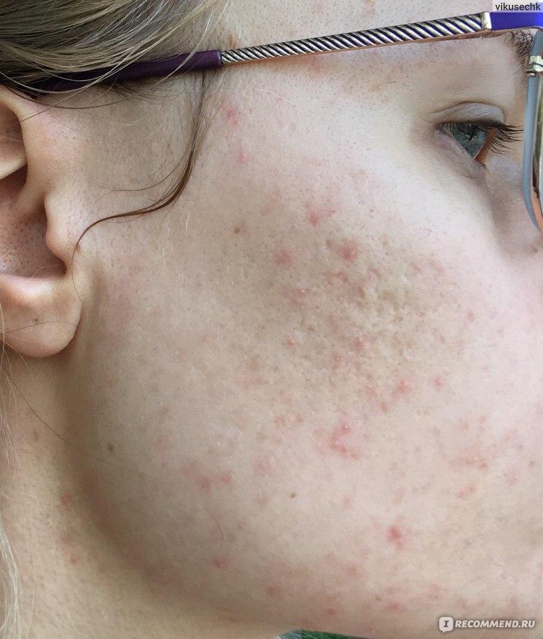 Клещ демодекс: причины, симптомы заражения, лечение в домашних условиях | fr-dc.ru