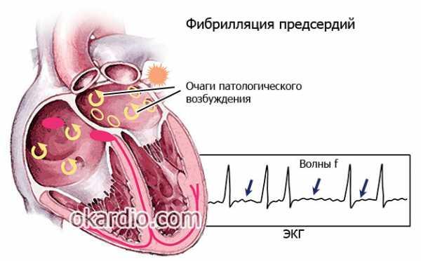 Дилатация камер сердца: причины и методы борьбы с патологией