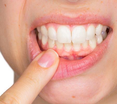 От чего возникает флюс — зубы