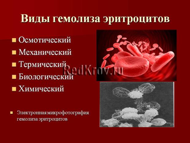 Гемолитическая анемия. причины, симптомы, диагностика и лечение патологии