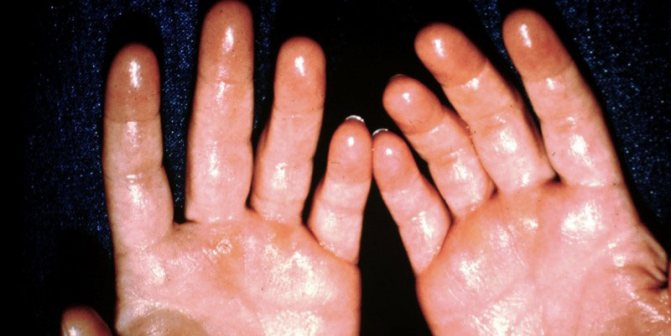 Гипергидроз: симптомы, причины, методы лечения