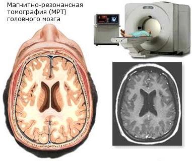 Что такое кт, компьютерная томография в медицине