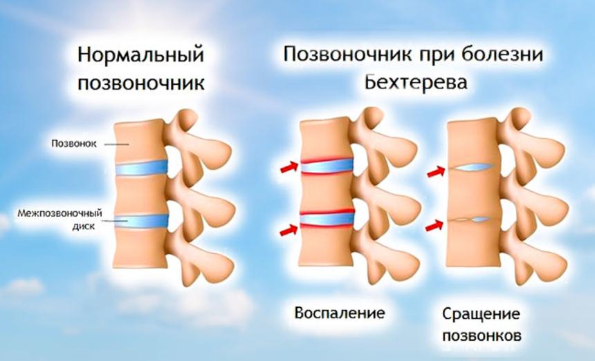 Болезнь бехтерева у мужчин и ее лечение