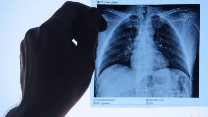 Симптом «матового стекла» - лучевая диагностика в педиатрии