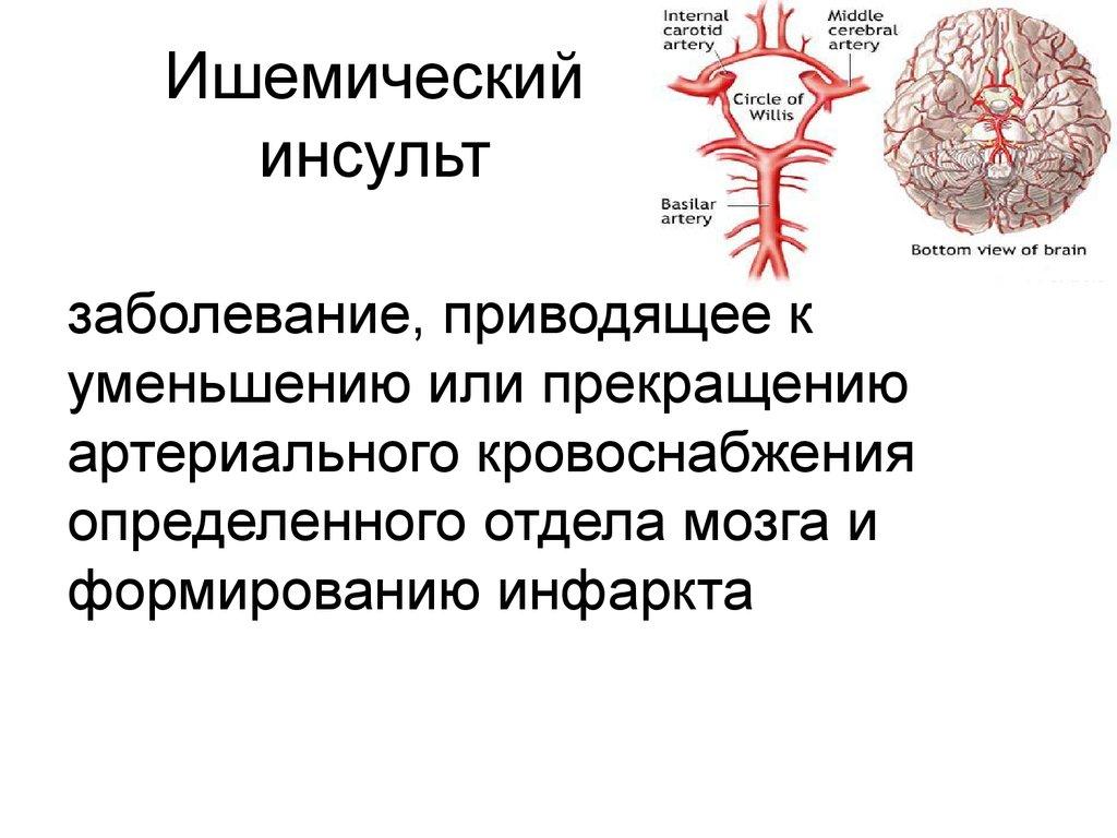 Причины возникновения ишемического инсульта