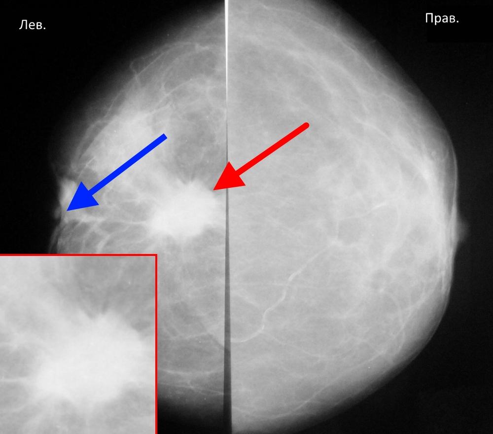 Маммография – что это такое?