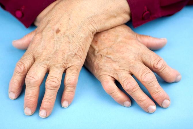 Серопозитивные ревматоидные артриты: что это такое, лечение, ранняя стадия, отличия от серонегативного, народные средства | ревматолог | zaslonovgrad.ru
