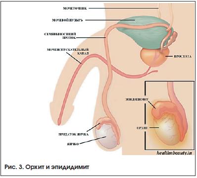 Мочевой пузырь и его заболевания