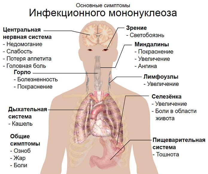 Вирус эпштейна-барра: фото, симптомы, лечение, отзывы