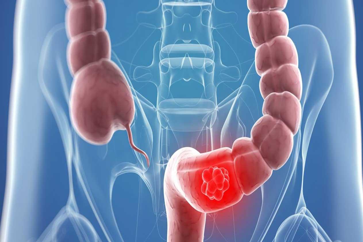 Лечение долихосигмы: операция, питание и диета, народные средства, массаж