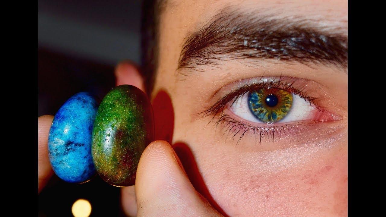 Гетерохромия глаз: причины центральной, частичной (секторной), приобретенной и полной гетерохромии радужки, как получить гетерохромию
