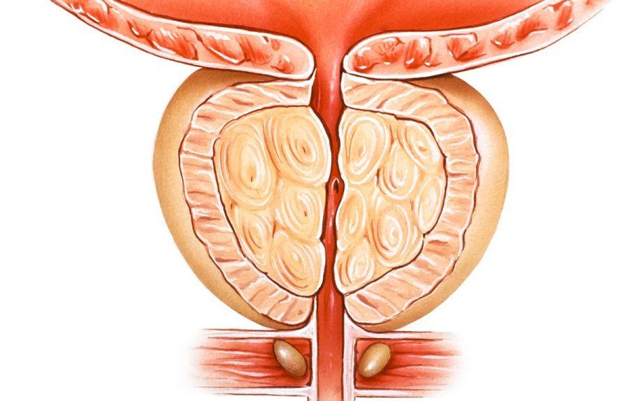 Аденома простаты у мужчин: симптомы, лечение, прогноз