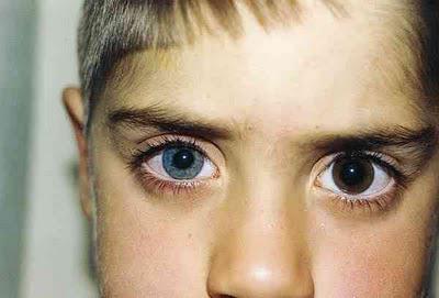 Анизокория: причины, симптомы, лечение (+фото)