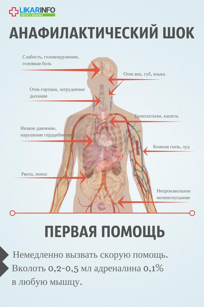 Анафилактический шок и анафилаксия. информация для пациентов. - доказательная медицина для всех