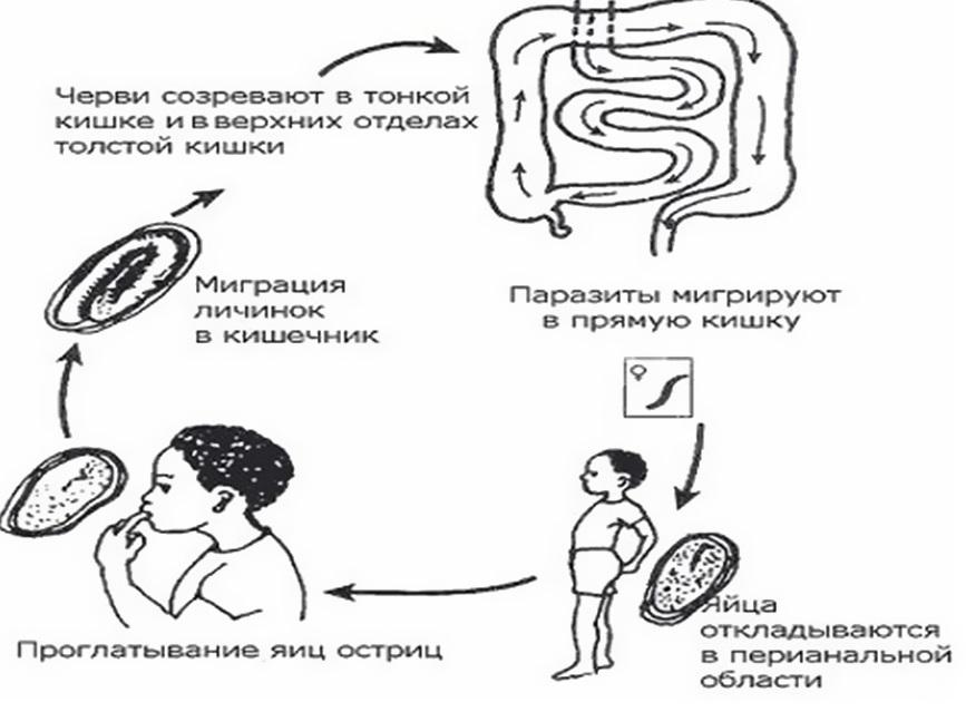 Энтеробиоз – это… что такое энтеробиоз? - пронедуг