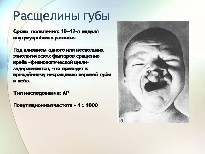 Заячья губа у новорожденных. заячья губа у детей