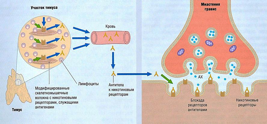 Миастения, миастенический синдром: причины, симптомы, лечение