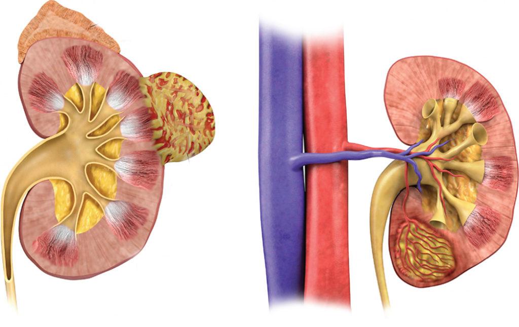 Ангиомиолипома почки (левой, правой): что это, лечение