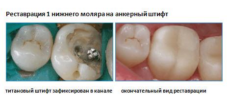 Штифт в зубе: что это такое и для чего нужен такой имплант | za-rozhdenie.ru