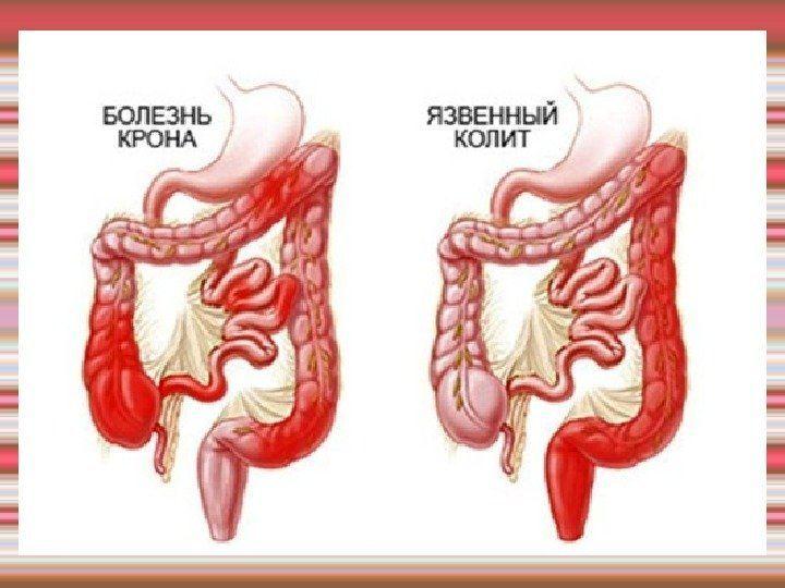 Язвенный колит - лечение - симптомы, диагностика, лечение, профилактика